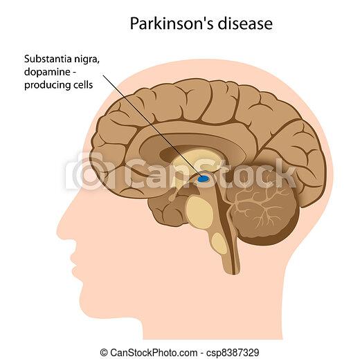 maladie, parkinson's, eps8 - csp8387329
