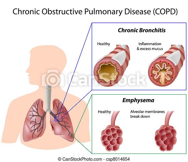 maladie, poumon, eps8 - csp8014654
