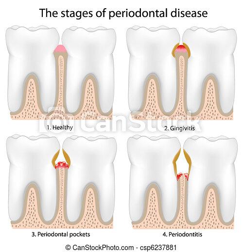 malattia periodontal - csp6237881