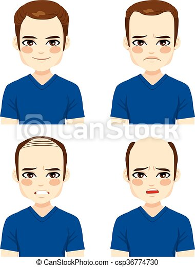 Male Hair Loss Stages - csp36774730