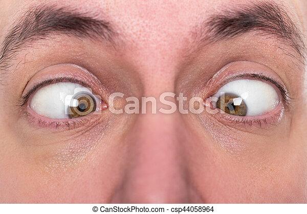 man is squinting, closeup, concept strabismus - csp44058964