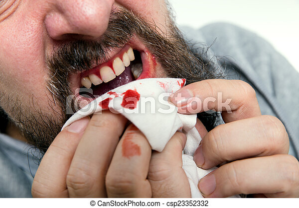man is suffering gums bleeding - csp23352332