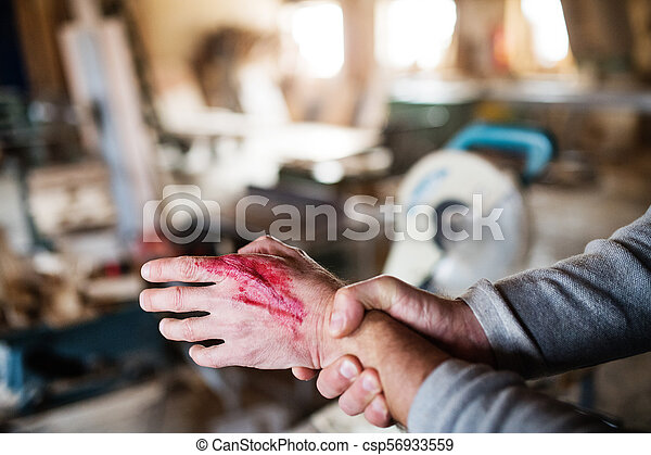 Man with an injured hand after accident at work in the carpentry workshop. - csp56933559