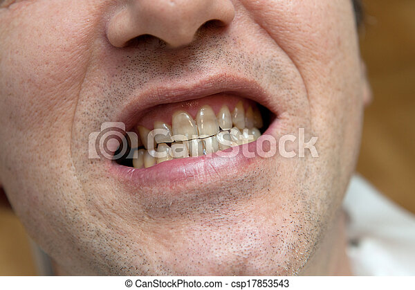 Man with yellow teeth. The harm of tobacco concept. - csp17853543