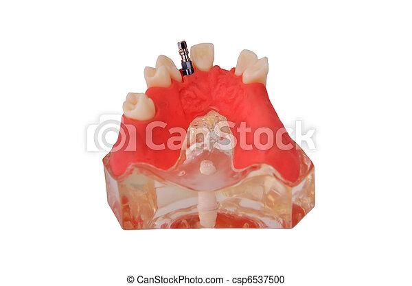 Tiburón con implante - csp6537500