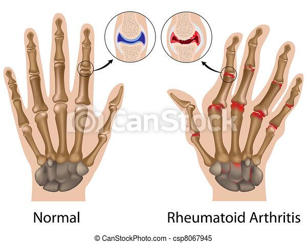 Artritis reumatoide de mano, eps8 - csp8067945