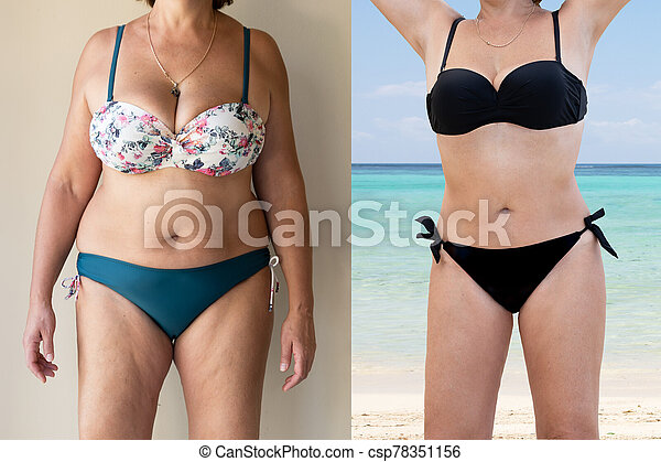 Mature Woman Before And After From Fat To Slim Concept - csp78351156