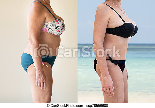 Mature Woman Before And After From Fat To Slim Concept - csp78556600