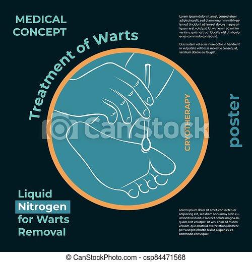 warts treatment liquid nitrogen papillomavirus accouchement