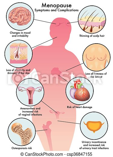 sintomas de osteoporosis en la menopausia