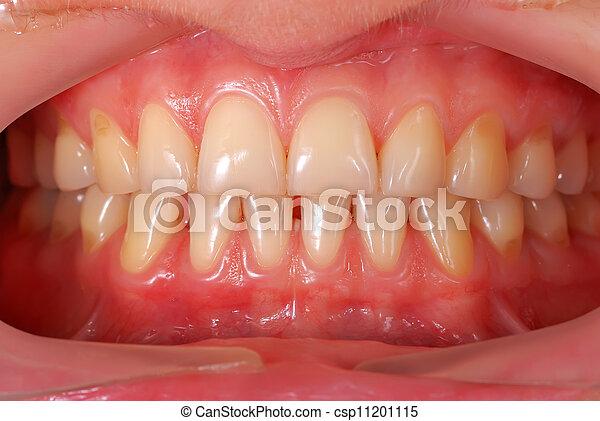 Menschenzähne - csp11201115
