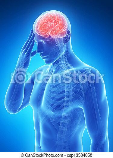 migraine/headache - csp13534058
