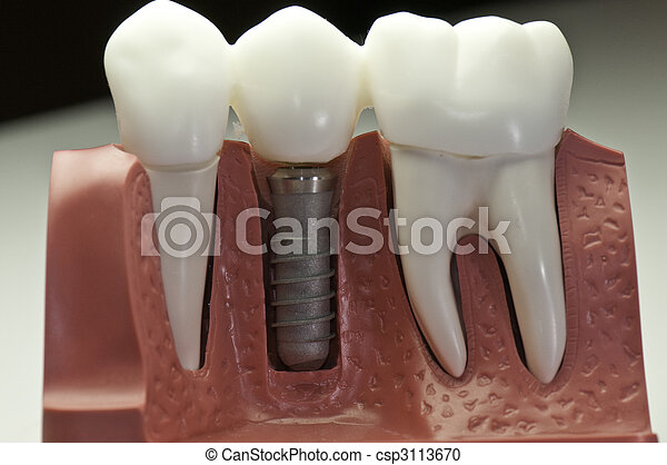 modell, dental, implantat, bedeckt - csp3113670