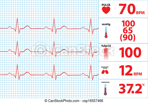 modern, monitor, elektrokardiogramm - csp16557466