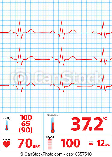 moderne, monitor, elektrocardiogram - csp16557510