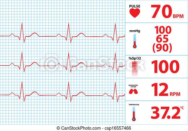Monitor electrocardiograma moderno - csp16557466