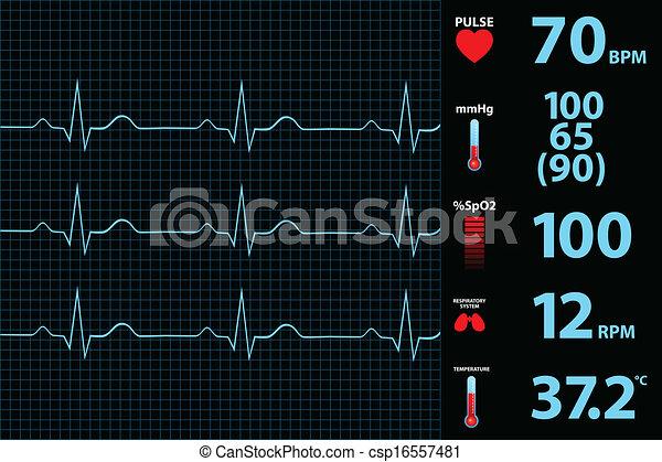 Monitor electrocardiograma moderno - csp16557481