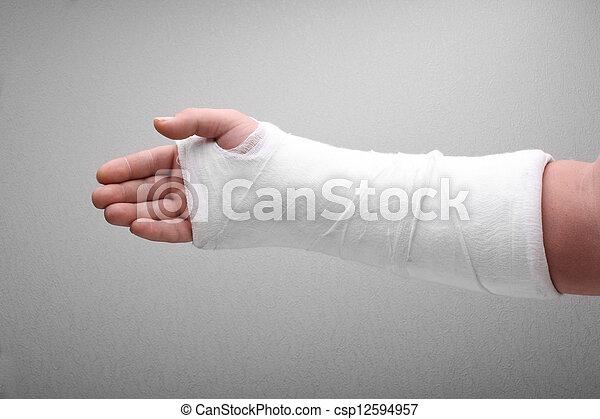 Un hueso roto enyesado - csp12594957