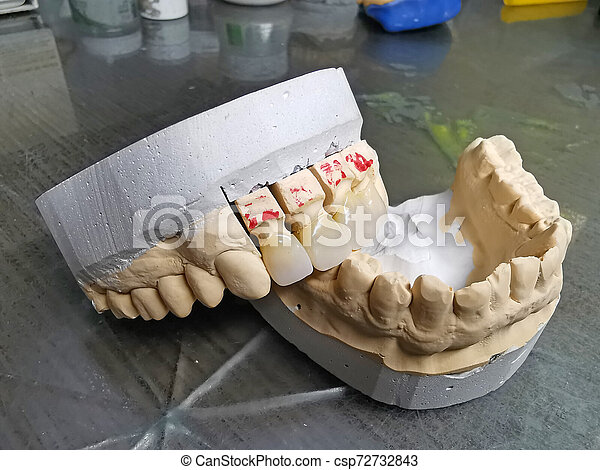 Mouth model with porcelain teeth - csp72732843