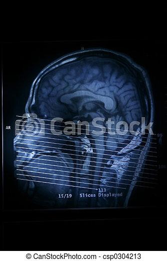 MRI Scan - csp0304213