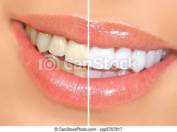 mujer, dientes - csp5767817
