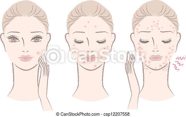 Mujer con granos molestos - csp12207558