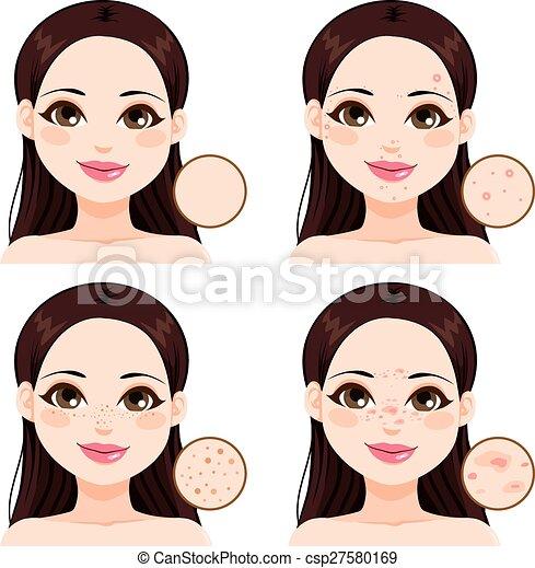 Problemas de piel de mujer - csp27580169