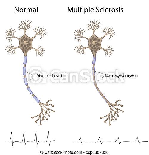 Multiple sclerosis, eps8 - csp8387328