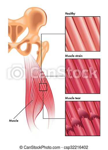 muscle strain and tear - csp32216402