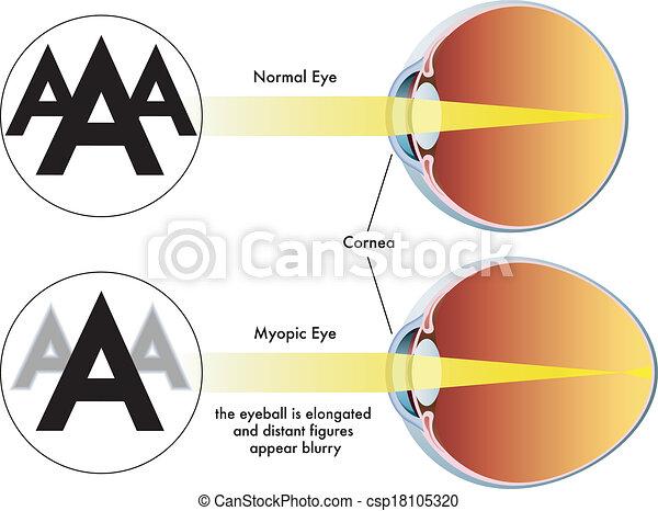 myopia - csp18105320
