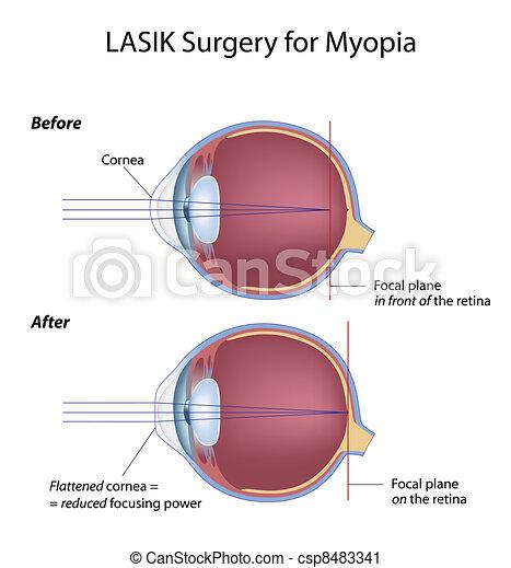 myopie, chirurgie, oeil, eps8, lasik - csp8483341
