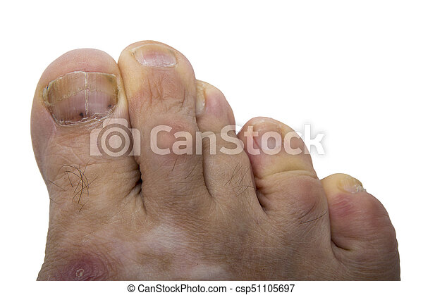 Nail fungus, melanoma. Fungal infection on the human toe. psoriasis ...