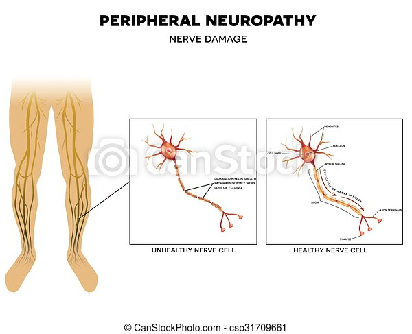 Free Heart Failure Clipart Neuropathy, nerv...