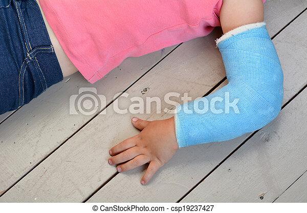 Niño con el brazo castrado - csp19237427