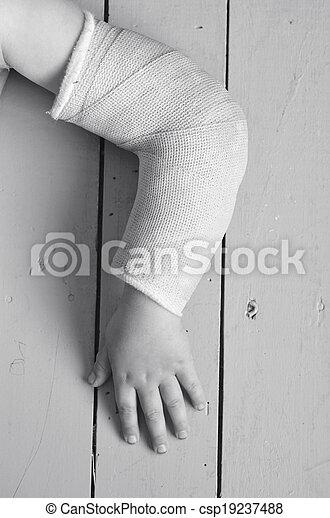 Niño con el brazo castrado - csp19237488