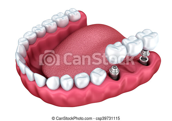 niższy, stomatologiczny, odizolowany, zęby, biały, wpajać, 3d - csp39731115