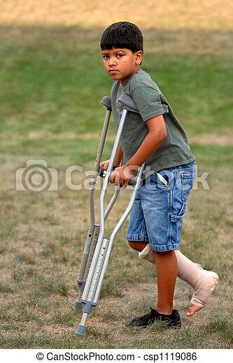 Las muletas no son divertidas. Un joven caminando en..