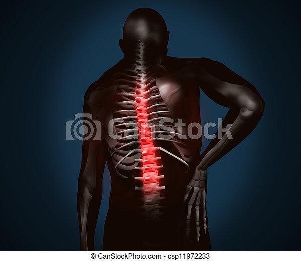 noir, douleur, dos, figure, numérique - csp11972233