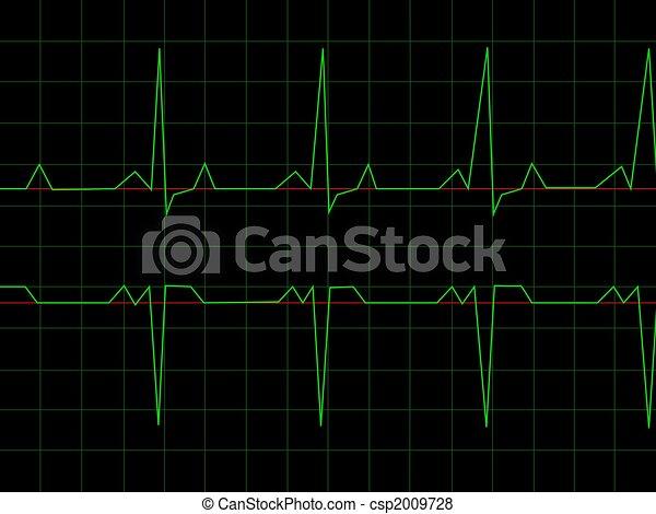 Normal Heart Rhythm - csp2009728