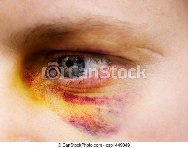 occhio nero, dettaglio - csp1449049