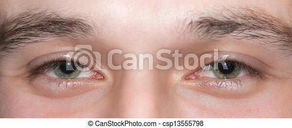 olhos - csp13555798
