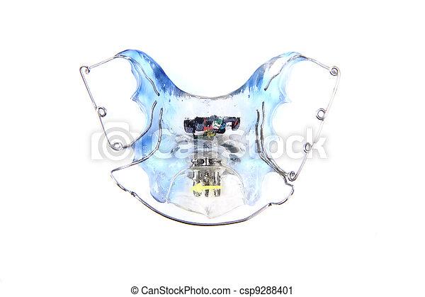 orthodontist braces - csp9288401