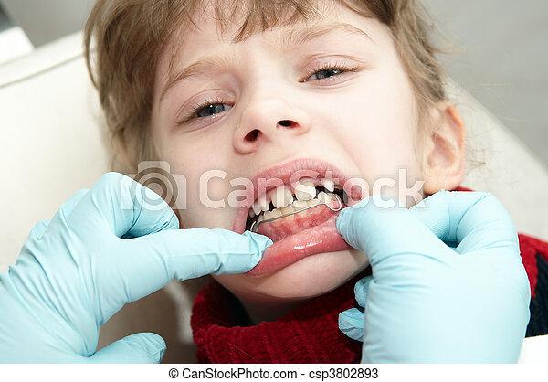 ortodontico, dentista, medico, esame, dottore - csp3802893