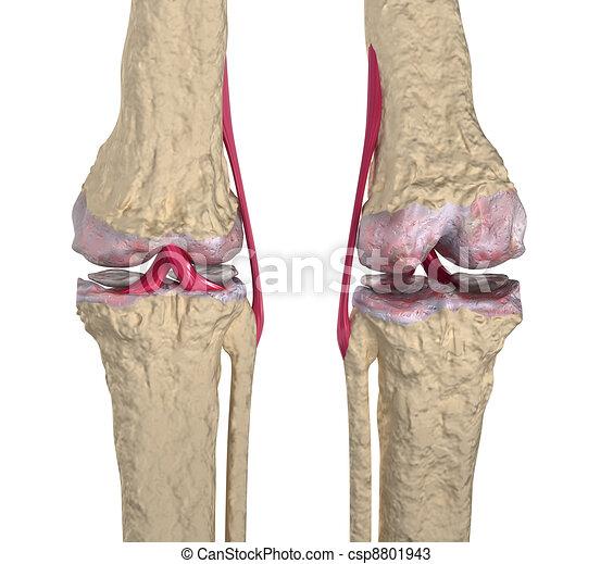 Osteoarthritis : Knee - csp8801943