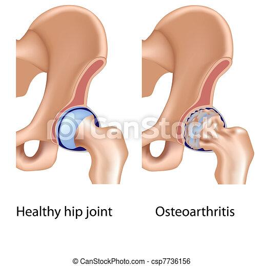 Osteoarthritis of hip joint, eps8 - csp7736156