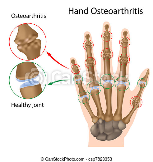 Osteoarthritis of the hand, eps8 - csp7823353