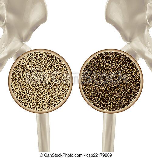 Osteoporosis - csp22179209