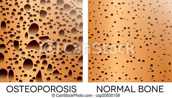 Osteoporosis, unhealthy bone - csp20830159
