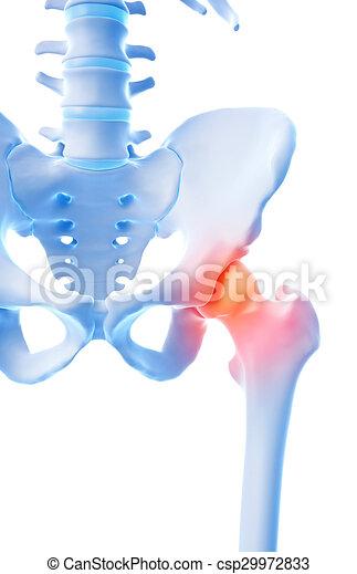 painful hip - csp29972833
