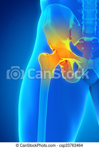 Painful Hip Joint - csp33763464